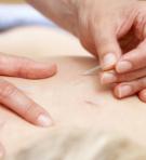 Acupuncturist treating female client